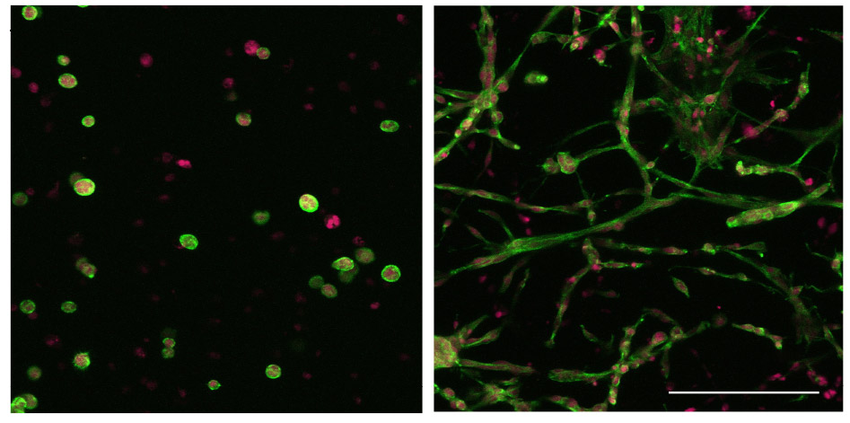 Figure 2: Confocal laser scanning microscopy of 3T3 fibroblasts